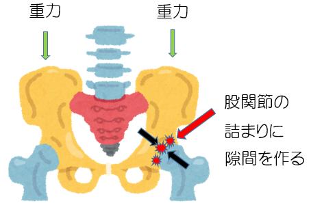 股関節の痛み イメージ図